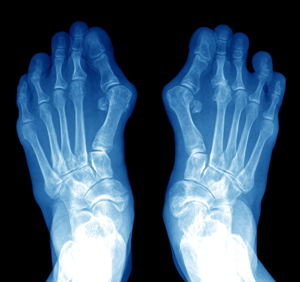 Bunions & Hammer Toes - Foot & Leg Centre