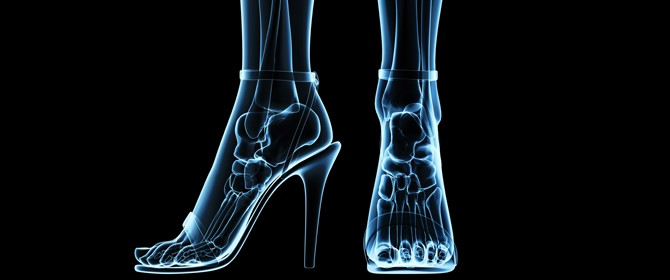 xray of feet in shoes