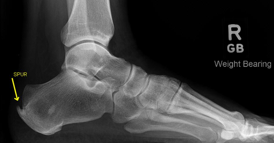 achilles tendon spur treatment