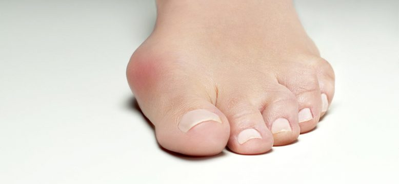 Inflamed bunions