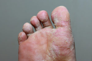 Foot infected with Athletes Foot